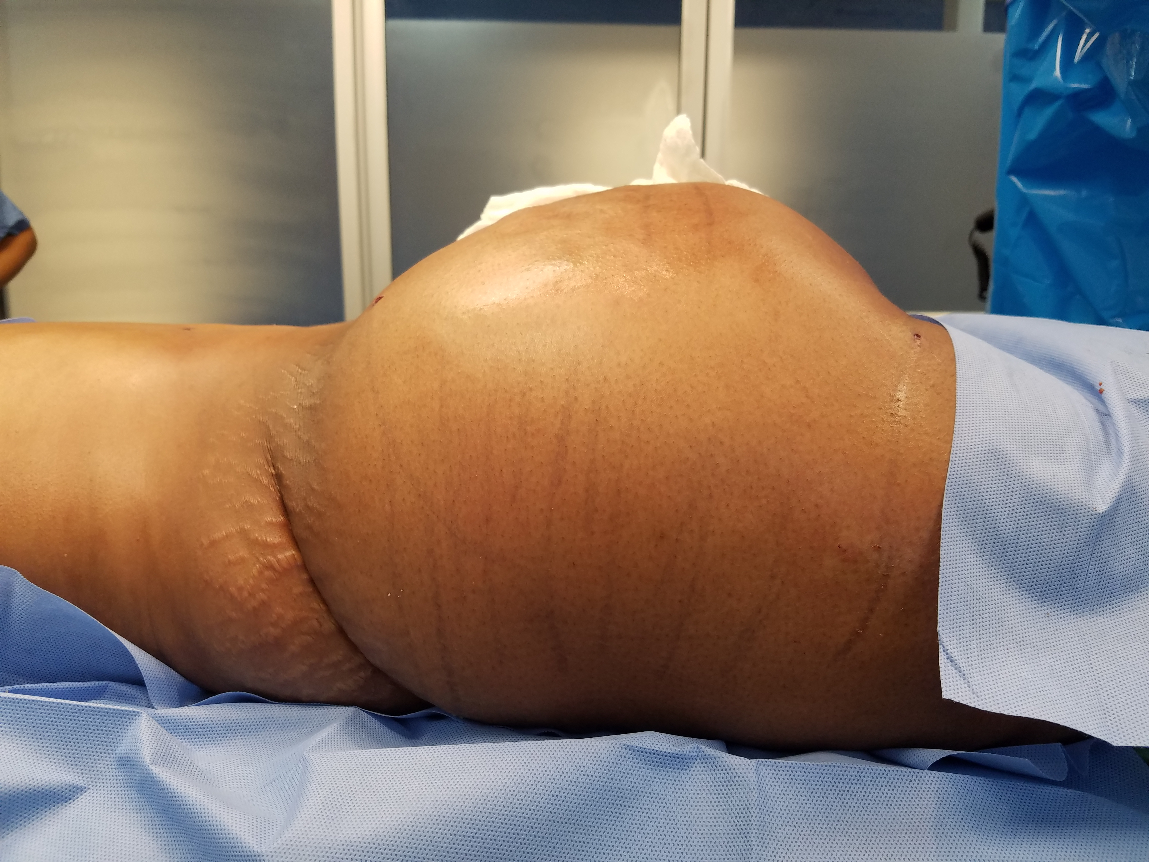 Atlanta liposuction, liposuction atlanta, atlanta brazilian butt lift, brazilian butt lift atlanta, therealdrmiami, drmiami, dr404, atlanta tummy tuck, tummy tuck atlanta