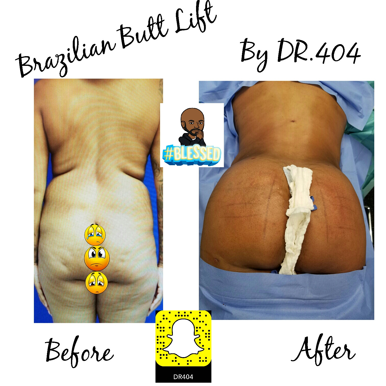Brazilian Butt Lift Atlanta, Brazilian Butt Lift (BBL) utilizes liposuction plastic surgery performed by our liposuction surgeon. Liposuction is performed using tumescent anesthesia and traditional liposuction plastic surgery.  We are experts in laser liposuction (smartlipo), vaser liposuction and fat transfer, also known as fat grafting.  Brazilian butt lift atlanta has been popularized by Dr. Curves and others like therealdrmiami of snapchat fame have made Brazilian butt lifts extremely popular in recent years. Our autologous fat transfer is second to none and we utilize Platelet-Rich Plasma (PRP) which helps stabilize the fat transfer faster by promoting blood vessels to grow into the fat grafting. Most people think that a Brazilian butt lift (BBL) is a plastic surgery procedure but instead it is a cosmetic surgery procedure strictly performed for enhancement of the buttock area to transform your butt into the big Brazilian butt and replicate the popular Brazilian ass that Brazilian butt women have been getting Brazilian butt lifts to have for years.  As part of our mommy makeover packages you can combine a Brazilian ass with a tummy tuck and/or breast augmentation with a mastopexy, which is more commonly associated with a mommy makeover.