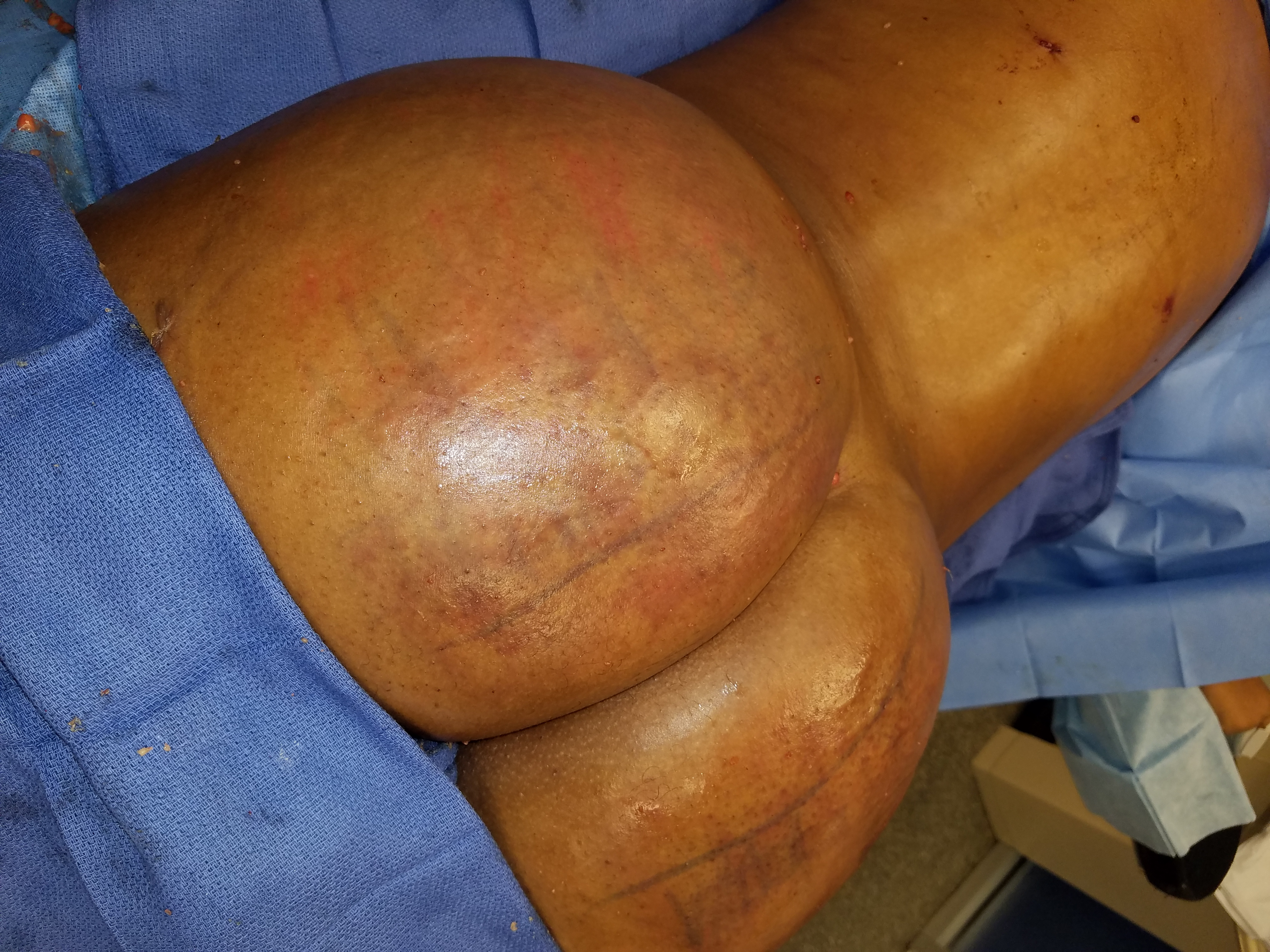 BBL, Butt Augmentation, Brazilian Butt, Brazilan Butt Lift, DrMiami Style, DrMiami, Tummy Tuck, fat transfer,, liposuction, plastic surgery, cosmestic surgeon