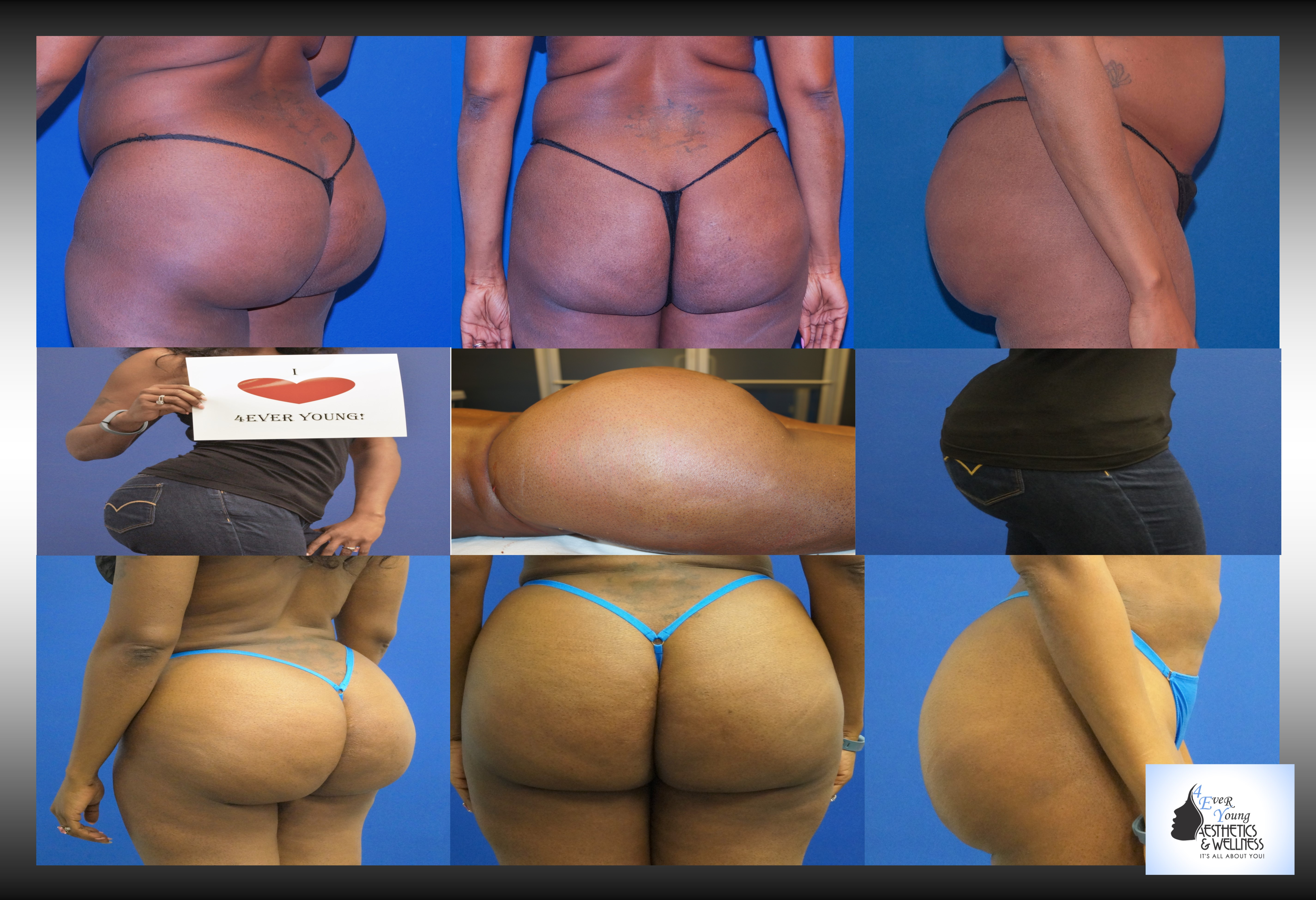 Brazilian Butt Lift after liposuction plastic surgery and fat transfer otherwise called a BBL. Fat grafting occurs after liposuction to many areas, abdominal liposuction, flank liposuction, back liposuction , thigh liposuction, arm liposuction and other areas. In Atlanta Brazilian Butt Lift results are compared between plastic surgeons and cosmetic surgeons by comparing before and after pictures.