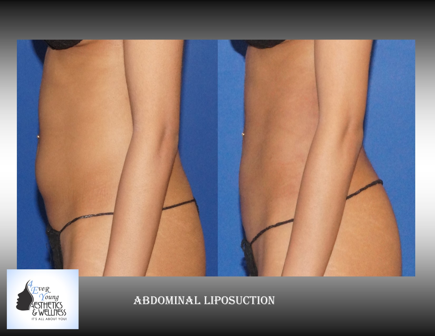 Liposuction is performed using tumescent anesthesia and traditional liposuction plastic surgery.  We are experts in laser liposuction (smartlipo), vaser liposuction and fat transfer, also known as fat grafting.  Our board-certified cosmetic surgeon is an expert at fat removal with liposuction which is an enhancement surgery and doesn't fall into the scope of practice of a board-certified plastic surgeon who is trained in reconstructive surgery.  Board-certified plastic surgeons with experience in liposuction are certainly qualified to perform the procedure but being trained strictly in plastic surgery is misleading.  We use abdominal liposuction, flank liposuction, back liposuction, arm liposuction, thigh liposuction and ankle liposuction to remove unsightly fat from problem areas with our tumescent liposuction procedures with or without sedation. If you desire we use autologous fat transfer (fat grafting) to use the fat obtained as the most natural dermal filler unlike synthetic fillers (Restylane, Juvederm, Sculptra, Radiesse, Belotero, Perlane) to improve fine lines and wrinkles of the face, hand rejuvenation with fat, fat transfer to breast, Brazilian Butt Lift (Butt Augmentation), liposculpture, lip augmentation with fat.  Fat transfer to the breast can be a great alternative to breast augmentation, saline implants, silicone implants, breast augmentation with mastopexy or just to improve volume in the upper pole of the breast.