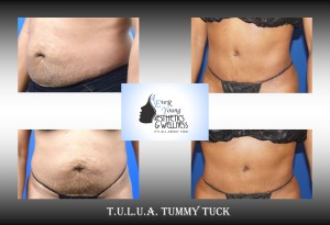 Flat, tight and a new belly button @ 4Ever Young!