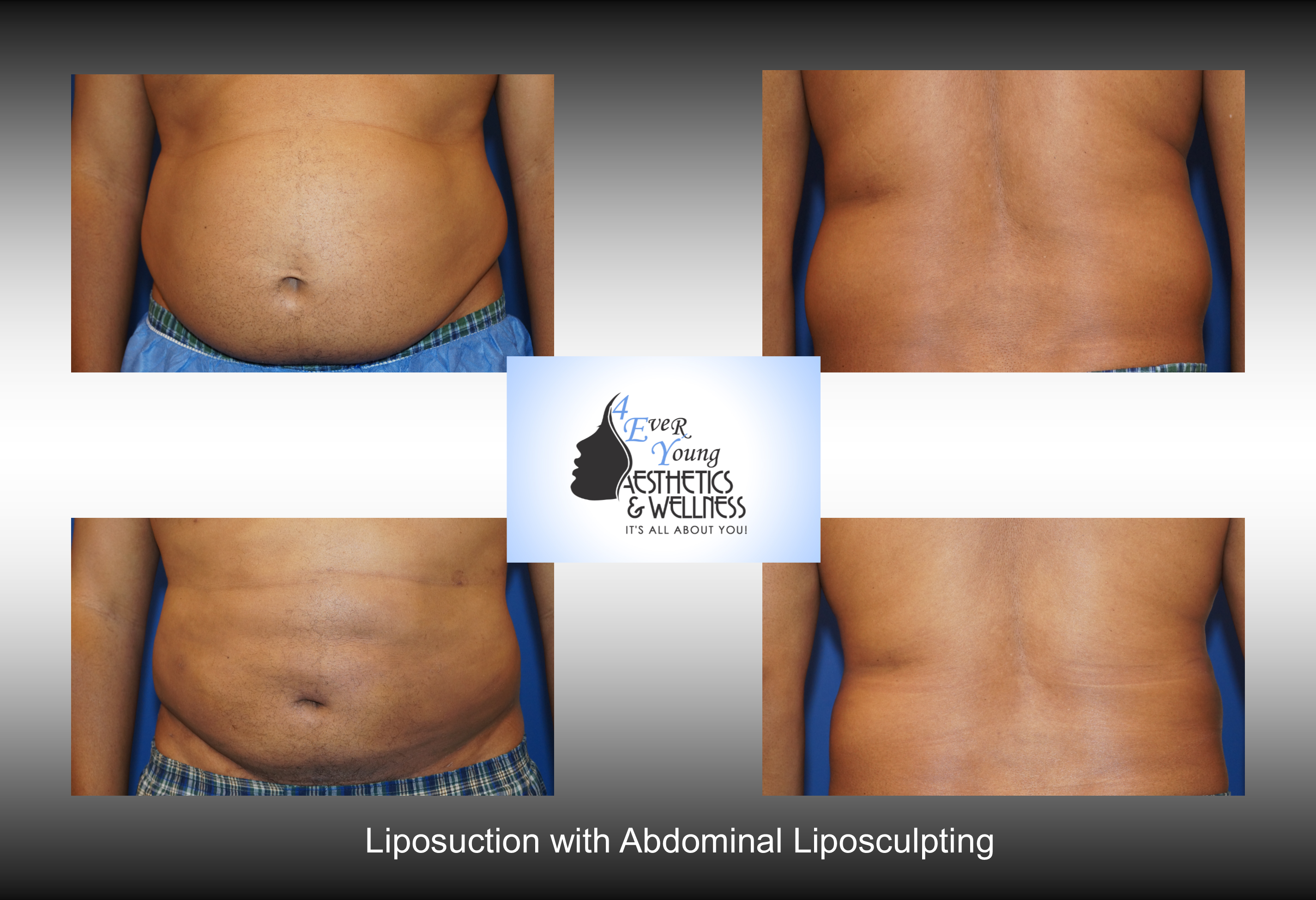 4Ever Young Aesthetics | Liposuction Before/After - 4Ever ...