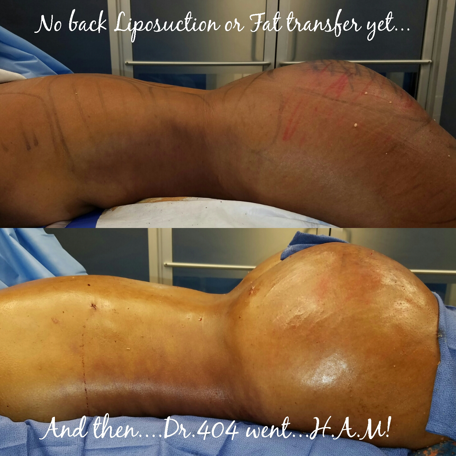 atlanta liposuction, liposuction atlanta, liposuction plastic surgery, plastic surgeon liposuction, brazilian butt lift, BBl, buttock augmentation, fat transfer