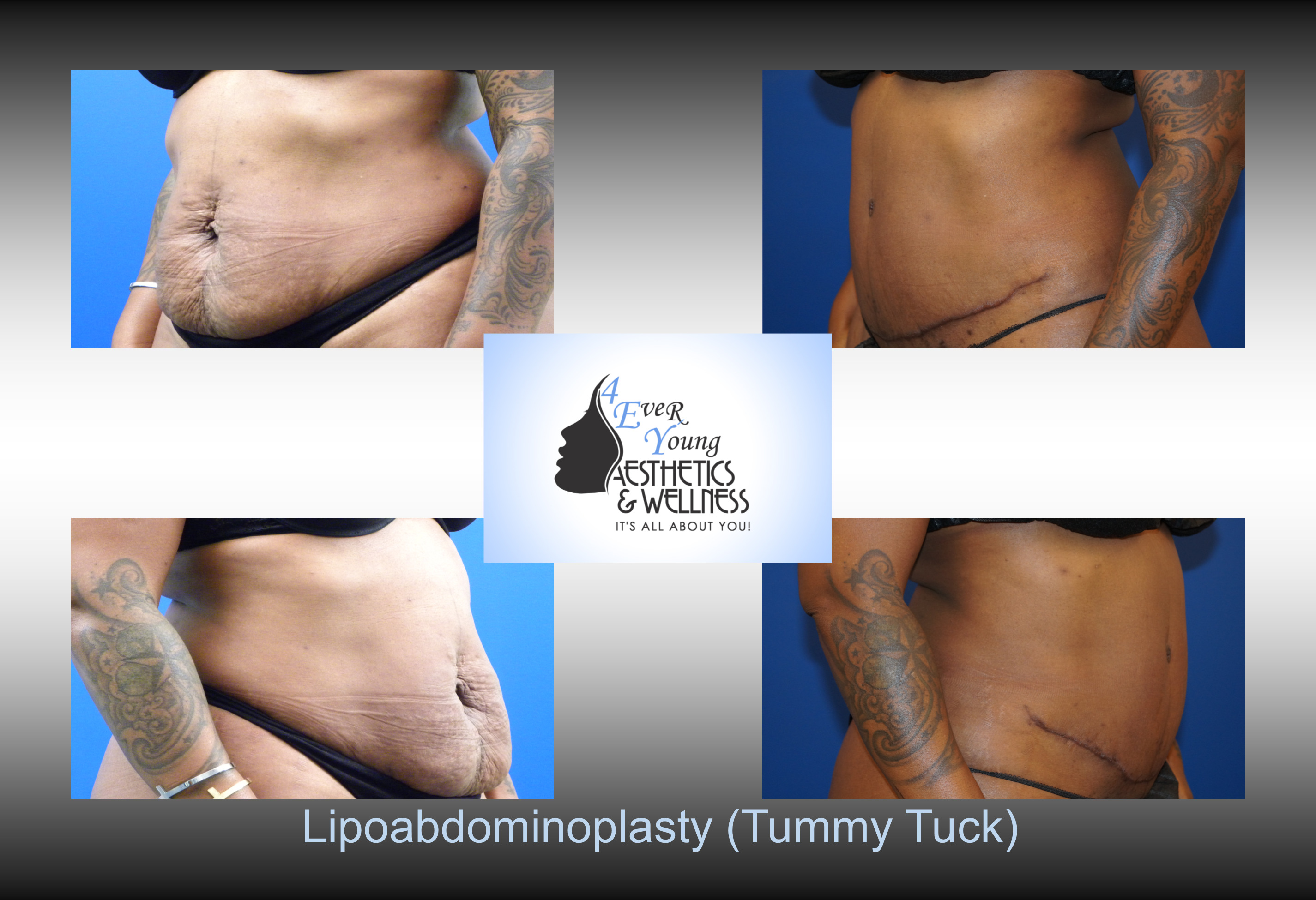 liposuction tummy tuck, Tummy Tuck, also known as abdominoplasty, lipoabdominoplasty, liposuction tummy tuck, is a procedure to that corrects a rectus diasthasis and removes excess or poor quality skin from the abdomen. We combine our tummy tuck with liposuction in order to contour the body resulting in a flat stomach with scars that are placed low in the bikini line. Our liposuction is accomplished by either traditional tumescent liposuction, laser liposuction (Smartlipo), vaser liposuction with the use of a power assisted liposuction handle to remove fat more thoroughly and rapidly. We use abdominal liposuction, flank liposuction, back liposuction, arm liposuction, thigh liposuction and ankle liposuction to remove unsightly fat from problem areas with our tumescent liposuction procedures with or without sedation. If you desire we use autologous fat transfer (fat grafting) to use the fat obtained as the most natural dermal filler unlike synthetic fillers (Restylane, Juvederm, Sculptra, Radiesse, Belotero, Perlane) to improve fine lines and wrinkles of the face, hand rejuvenation with fat, fat transfer to breast, Brazilian Butt Lift (Butt Augmentation), liposculpture, lip augmentation with fat.  Fat transfer to the breast can be a great alternative to breast augmentation, saline implants, silicone implants, breast augmentation with mastopexy or just to improve volume in the upper pole of the breast. Our autologous fat transfer is second to none and we utilize Platelet-Rich Plasma (PRP) which helps stabilize the fat transfer faster by promoting blood vessels to grow into the fat grafting. Most people think that a Brazilian butt lift (BBL) is a plastic surgery procedure but instead it is a cosmetic surgery procedure strictly performed for enhancement of the buttock area to transform your butt into the big Brazilian butt and replicate the popular Brazilian ass that Brazilian butt women have been getting Brazilian butt lifts to have for years.  As part of our mommy make