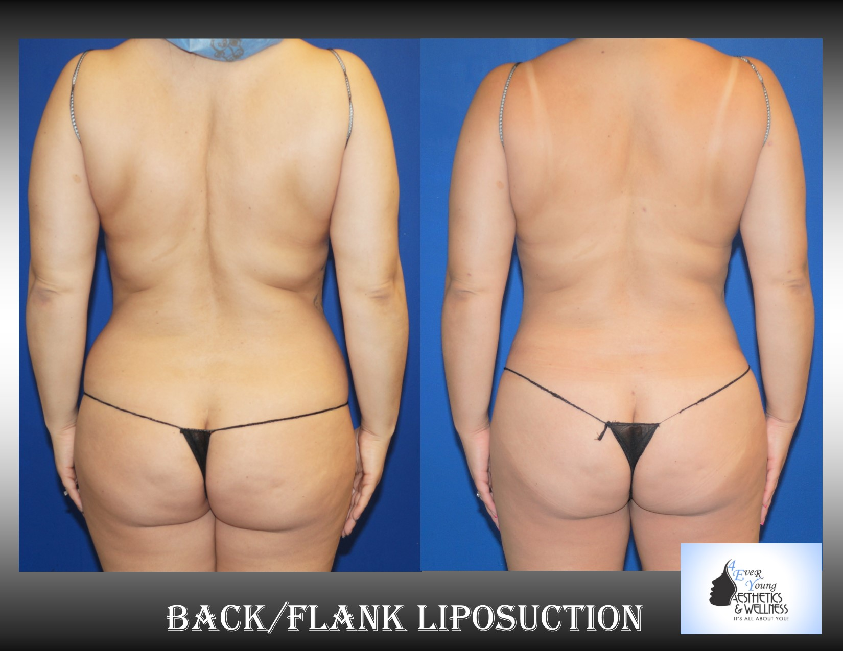 Liposuction atlanta, Liposuction is performed using tumescent anesthesia and traditional liposuction plastic surgery.  We are experts in laser liposuction (smartlipo), vaser liposuction and fat transfer, also known as fat grafting.  Our board-certified cosmetic surgeon is an expert at fat removal with liposuction which is an enhancement surgery and doesn't fall into the scope of practice of a board-certified plastic surgeon who is trained in reconstructive surgery.  Board-certified plastic surgeons with experience in liposuction are certainly qualified to perform the procedure but being trained strictly in plastic surgery is misleading.  We use abdominal liposuction, flank liposuction, back liposuction, arm liposuction, thigh liposuction and ankle liposuction to remove unsightly fat from problem areas with our tumescent liposuction procedures with or without sedation. If you desire we use autologous fat transfer (fat grafting) to use the fat obtained as the most natural dermal filler unlike synthetic fillers (Restylane, Juvederm, Sculptra, Radiesse, Belotero, Perlane) to improve fine lines and wrinkles of the face, hand rejuvenation with fat, fat transfer to breast, Brazilian Butt Lift (Butt Augmentation), liposculpture, lip augmentation with fat.  Fat transfer to the breast can be a great alternative to breast augmentation, saline implants, silicone implants, breast augmentation with mastopexy or just to improve volume in the upper pole of the breast.