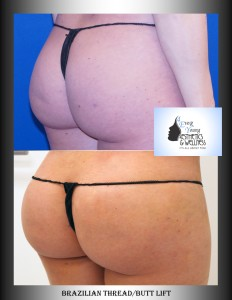 Great results with limited fat & Thread Lift.  Awesome Curves!