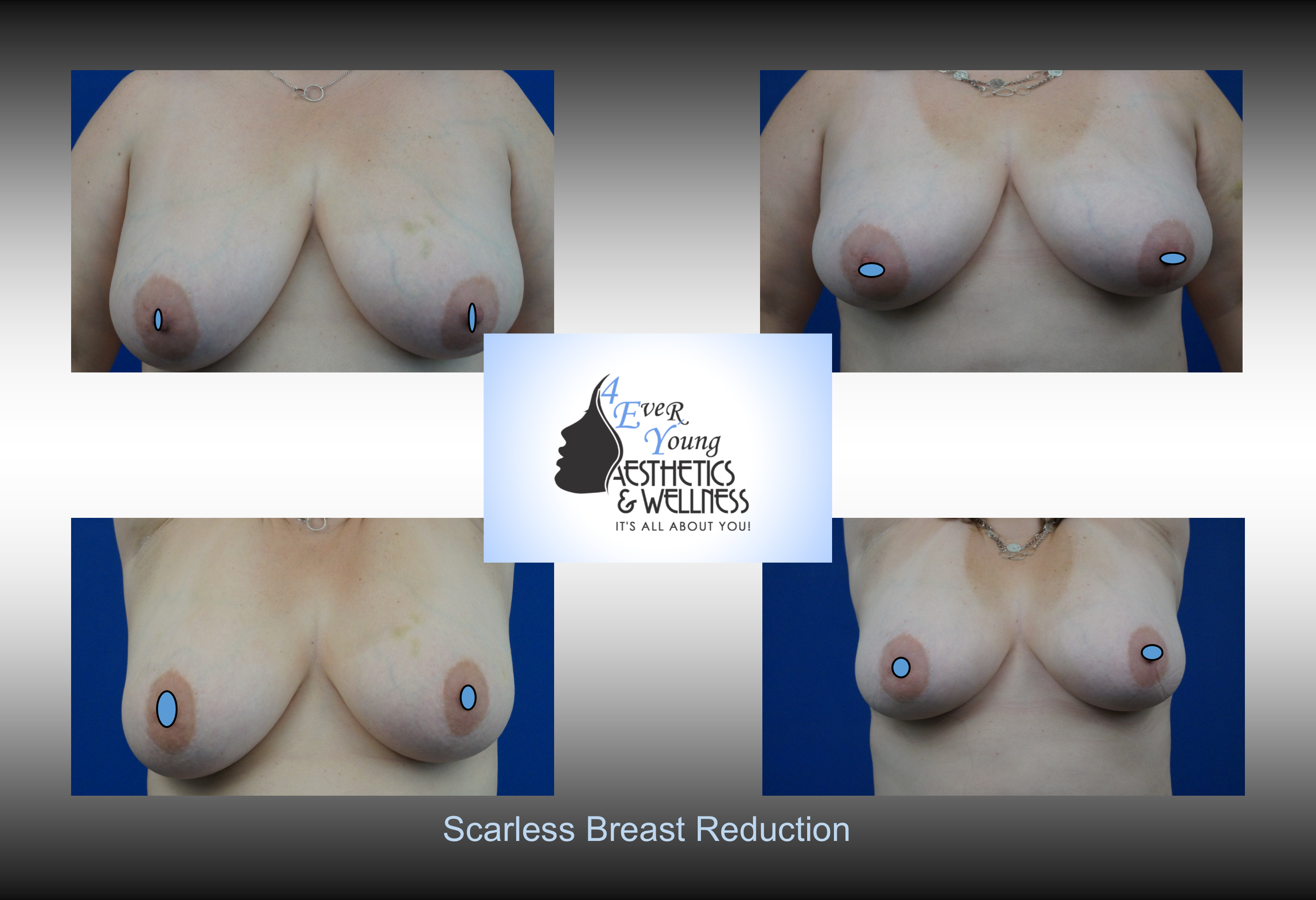 Scarless Breast Reduction, Liposuction is performed using tumescent anesthesia and traditional liposuction plastic surgery.  We are experts in laser liposuction (smartlipo), vaser liposuction and fat transfer, also known as fat grafting.  Our board-certified cosmetic surgeon is an expert at fat removal with liposuction which is an enhancement surgery and doesn't fall into the scope of practice of a board-certified plastic surgeon who is trained in reconstructive surgery.  Board-certified plastic surgeons with experience in liposuction are certainly qualified to perform the procedure but being trained strictly in plastic surgery is misleading.  We use abdominal liposuction, flank liposuction, back liposuction, arm liposuction, thigh liposuction and ankle liposuction to remove unsightly fat from problem areas with our tumescent liposuction procedures with or without sedation. If you desire we use autologous fat transfer (fat grafting) to use the fat obtained as the most natural dermal filler unlike synthetic fillers (Restylane, Juvederm, Sculptra, Radiesse, Belotero, Perlane) to improve fine lines and wrinkles of the face, hand rejuvenation with fat, fat transfer to breast, Brazilian Butt Lift (Butt Augmentation), liposculpture, lip augmentation with fat.  Fat transfer to the breast can be a great alternative to breast augmentation, saline implants, silicone implants, breast augmentation with mastopexy or just to improve volume in the upper pole of the breast.
