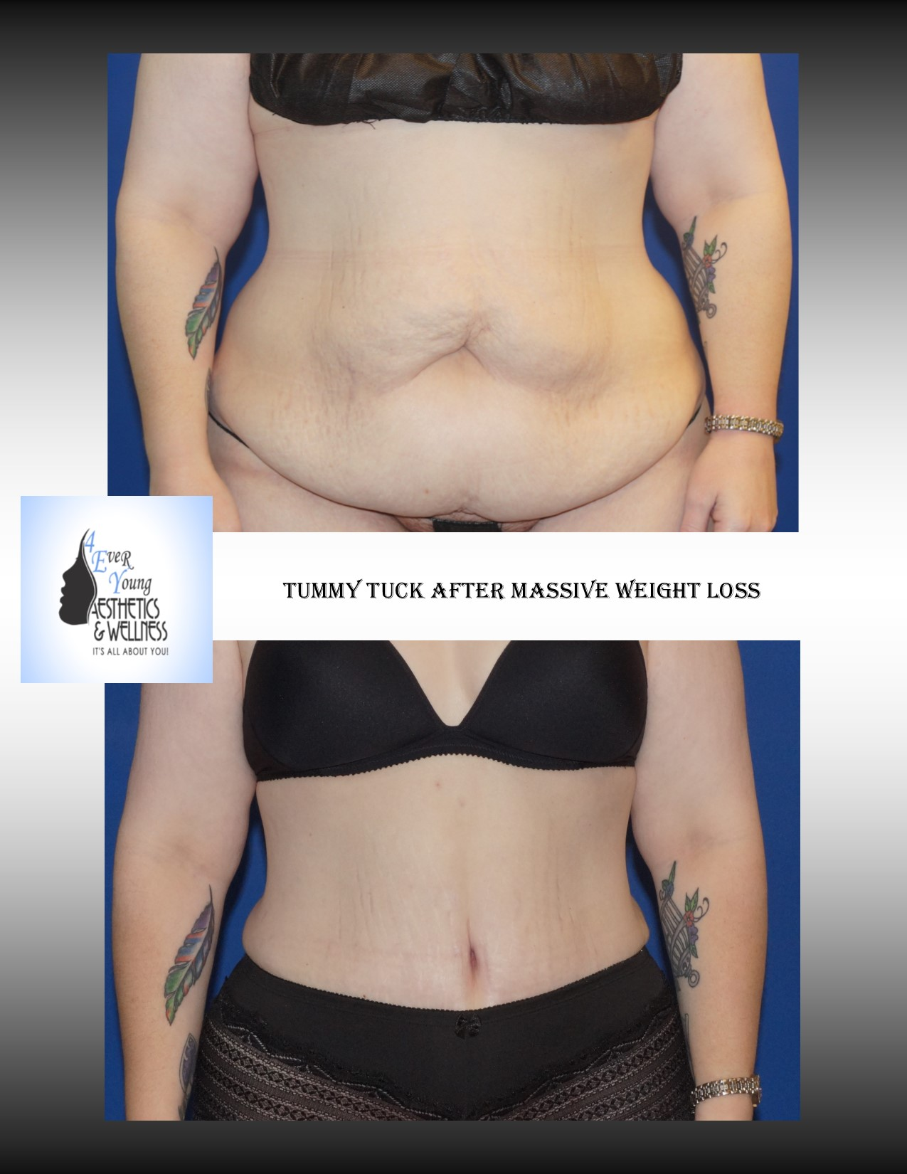 Tummy tuck plastic surgery, Tummy Tuck, also known as abdominoplasty, lipoabdominoplasty, liposuction tummy tuck, is a procedure to that corrects a rectus diasthasis and removes excess or poor quality skin from the abdomen. We combine our tummy tuck with liposuction in order to contour the body resulting in a flat stomach with scars that are placed low in the bikini line. Our liposuction is accomplished by either traditional tumescent liposuction, laser liposuction (Smartlipo), vaser liposuction with the use of a power assisted liposuction handle to remove fat more thoroughly and rapidly. We use abdominal liposuction, flank liposuction, back liposuction, arm liposuction, thigh liposuction and ankle liposuction to remove unsightly fat from problem areas with our tumescent liposuction procedures with or without sedation. If you desire we use autologous fat transfer (fat grafting) to use the fat obtained as the most natural dermal filler unlike synthetic fillers (Restylane, Juvederm, Sculptra, Radiesse, Belotero, Perlane) to improve fine lines and wrinkles of the face, hand rejuvenation with fat, fat transfer to breast, Brazilian Butt Lift (Butt Augmentation), liposculpture, lip augmentation with fat.  Fat transfer to the breast can be a great alternative to breast augmentation, saline implants, silicone implants, breast augmentation with mastopexy or just to improve volume in the upper pole of the breast. Our autologous fat transfer is second to none and we utilize Platelet-Rich Plasma (PRP) which helps stabilize the fat transfer faster by promoting blood vessels to grow into the fat grafting. Most people think that a Brazilian butt lift (BBL) is a plastic surgery procedure but instead it is a cosmetic surgery procedure strictly performed for enhancement of the buttock area to transform your butt into the big Brazilian butt and replicate the popular Brazilian ass that Brazilian butt women have been getting Brazilian butt lifts to have for years.  As part of our mommy 