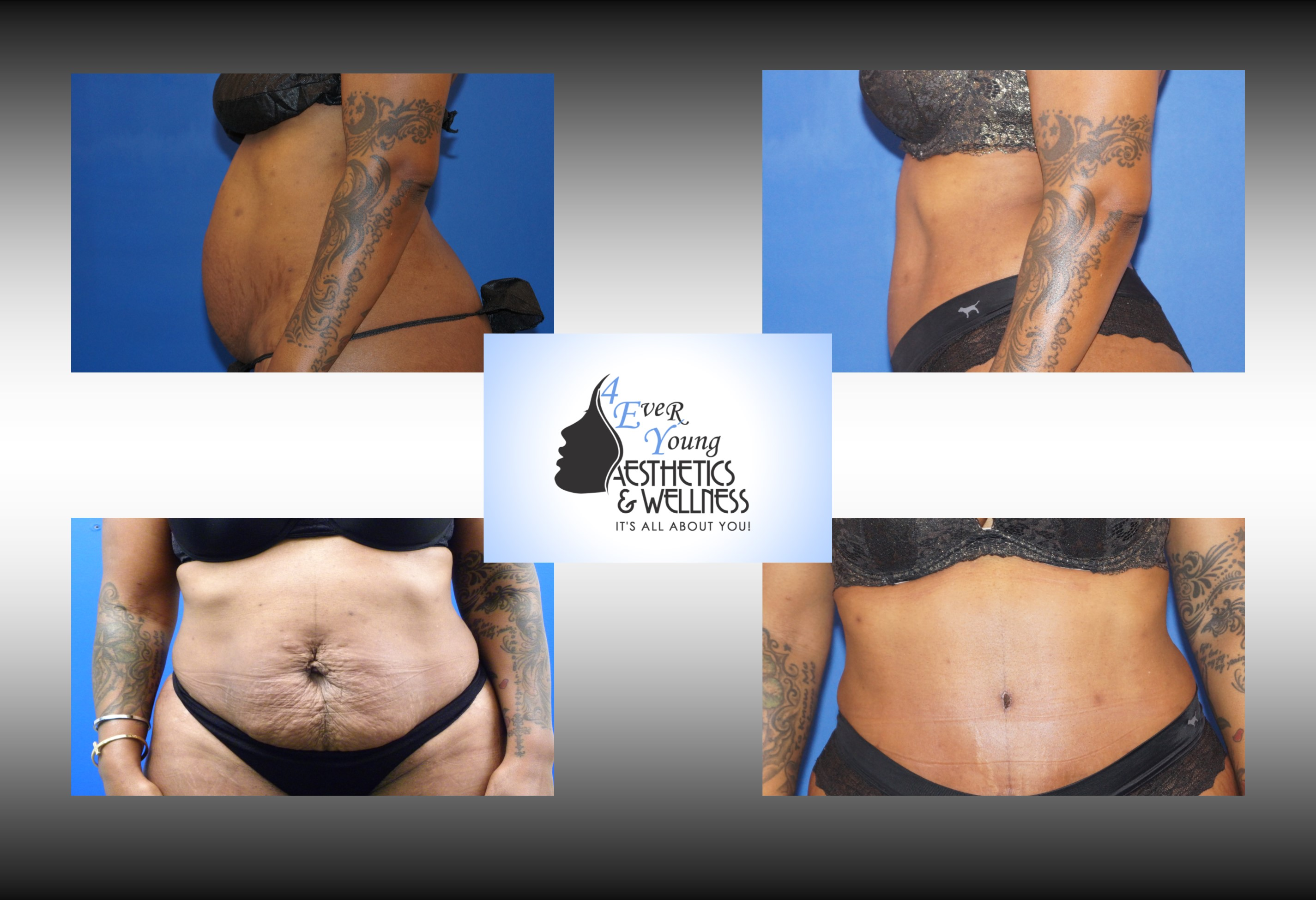 tummy tuck cost, Tummy Tuck, also known as abdominoplasty, lipoabdominoplasty, liposuction tummy tuck, is a procedure to that corrects a rectus diasthasis and removes excess or poor quality skin from the abdomen. We combine our tummy tuck with liposuction in order to contour the body resulting in a flat stomach with scars that are placed low in the bikini line. Our liposuction is accomplished by either traditional tumescent liposuction, laser liposuction (Smartlipo), vaser liposuction with the use of a power assisted liposuction handle to remove fat more thoroughly and rapidly. We use abdominal liposuction, flank liposuction, back liposuction, arm liposuction, thigh liposuction and ankle liposuction to remove unsightly fat from problem areas with our tumescent liposuction procedures with or without sedation. If you desire we use autologous fat transfer (fat grafting) to use the fat obtained as the most natural dermal filler unlike synthetic fillers (Restylane, Juvederm, Sculptra, Radiesse, Belotero, Perlane) to improve fine lines and wrinkles of the face, hand rejuvenation with fat, fat transfer to breast, Brazilian Butt Lift (Butt Augmentation), liposculpture, lip augmentation with fat.  Fat transfer to the breast can be a great alternative to breast augmentation, saline implants, silicone implants, breast augmentation with mastopexy or just to improve volume in the upper pole of the breast. Our autologous fat transfer is second to none and we utilize Platelet-Rich Plasma (PRP) which helps stabilize the fat transfer faster by promoting blood vessels to grow into the fat grafting. Most people think that a Brazilian butt lift (BBL) is a plastic surgery procedure but instead it is a cosmetic surgery procedure strictly performed for enhancement of the buttock area to transform your butt into the big Brazilian butt and replicate the popular Brazilian ass that Brazilian butt women have been getting Brazilian butt lifts to have for years.  As part of our mommy makeover pa